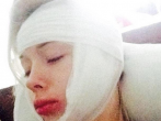 Valeria Lukyanova's injuries after allegedly being viciously attacked